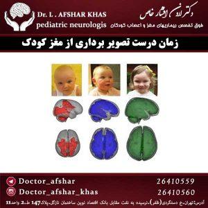 زمان-درست-تصویربرداری-از-مغز-کودک