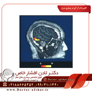 کاربرد-ام-آر-آی-در-بیماری-صرع